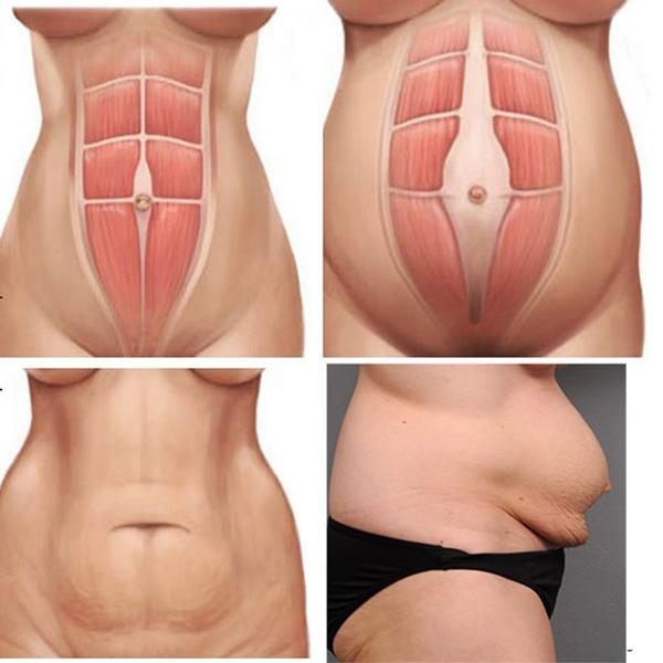 Máy massage giảm mỡ bụng