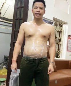 Đai massage bụng quấn nóng Saporoo