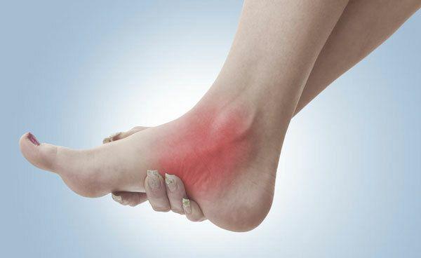 Triệu chứng của bệnh đau nhức chân có biểu hiện như thế nào?