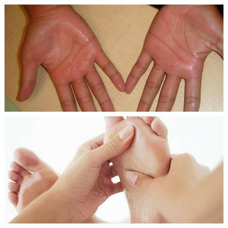 Ra mồ hôi chân tay là bệnh gì?