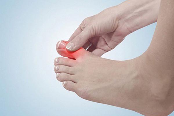 Bị tê ngón chân cái là bệnh gì?